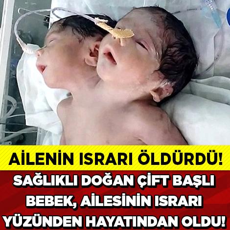 İki Başlı Bebek Ailesinin Israrı Yüzünden Öldü - 1